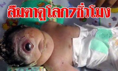 ลืมตาดูโลก7ชั่วโมง พ่อแม่เศร้า ลูกเกิดมาพิการ ตาเดียว-ไม่มีจมูก (คลิป)