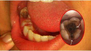 8 สมุนไพรไทย แก้ปวดฟัน (แมงกินฟัน) หาง่ายในครัว