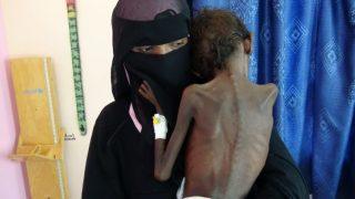 โครงการอาหารโลกเผย แม้ยุติเหตุรุนแรงในเยเมน ก็ยังแก้ปัญหาอดอยากไม่ได้