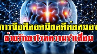 การถือศีลอดในเดือนรอมฎอนนั้นเป็นประโยชน์ต่อสมอง