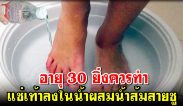 อายุ 30 ยิ่งควรทำ แช่เท้าลงในน้ำผสมน้ำส้มสายชู 2 ช้อนโต๊ะ เหนื่อยเมื่อยล้าจะหายเลย