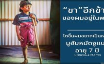 มูฮัมหมัดจูแบร์ อายุ 7 ปี ถูกทหารพม่าทำร้าย เสียขาหนึ่งข้าง